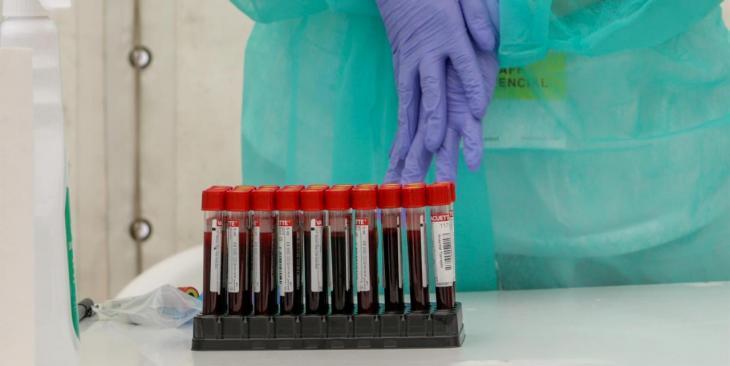 Notifiquen tres brots de coronavirus a Mallorca en la darrera setmana